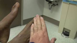 Foot Drop and Peroneal Nerve Injury