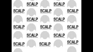 Scalp Micropigmentation on Black Skin.  Scalp Micropigmentation on Dark Skin.  SMP on Dark Skin.
