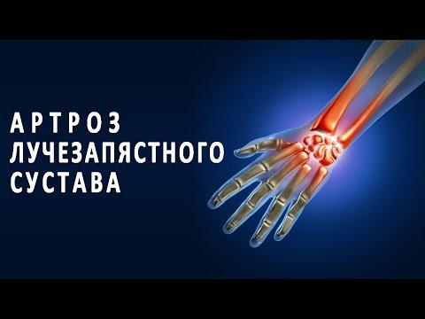 Что нужно знать об артрозе лучезапястного сустава