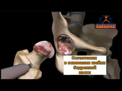 Клиника здоровые суставы отзывы