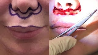 Lip-lift Procedure