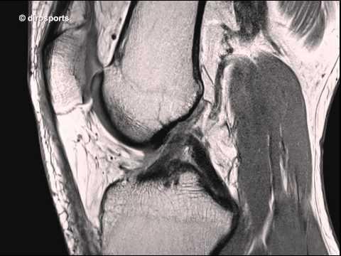 Was für eine Tablette von Osteochondrose