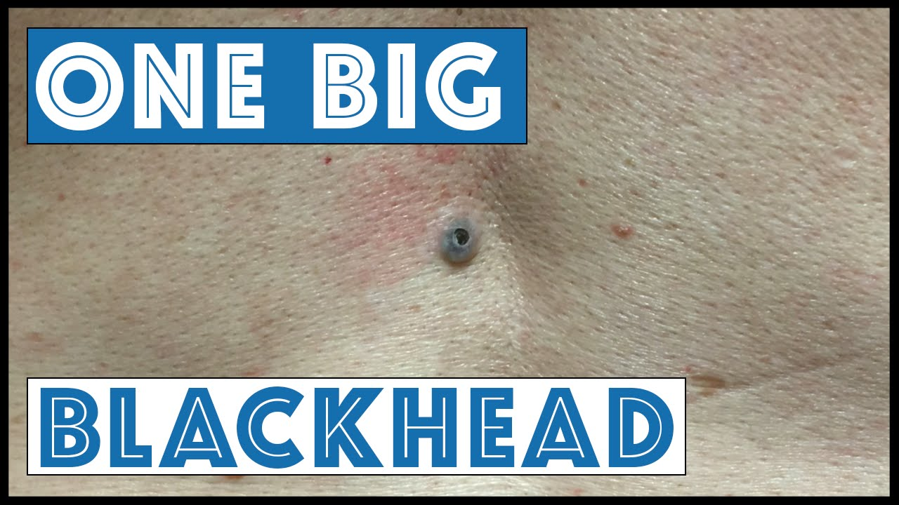 Blackheads On Back Youtube
