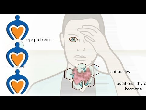 Video Thyroid problems - most common thyroid problems, symptoms and treatment
