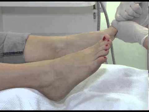 Za liječenje hipertenzije darsonval