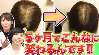 【発毛への近道はコレ!!】効果的な育毛剤の付け方を教えます!!