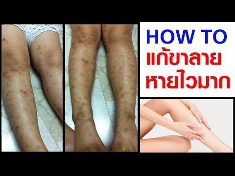 Menovazin และ thrombophlebitis