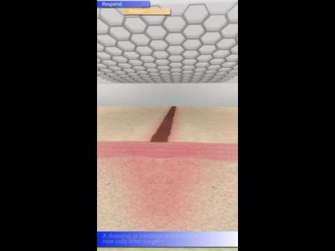 Video Surgical wound healing
