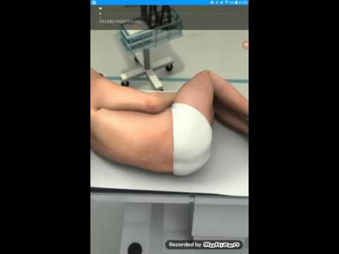 Imagen diagnóstico hipertensión