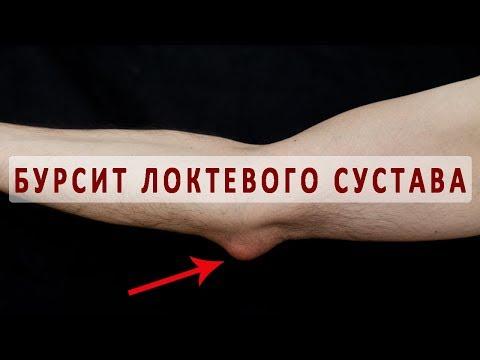 Что нужно знать о бурсите локтевого сустава