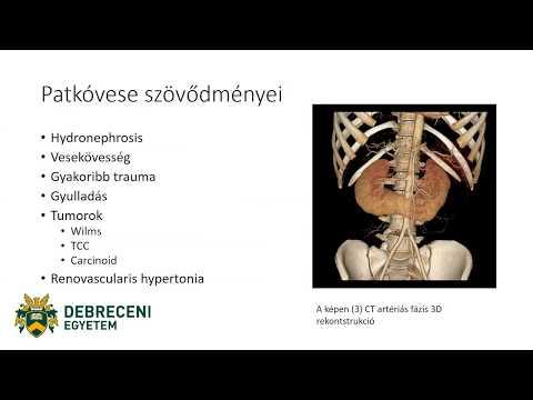 Magas vérnyomás tényezők