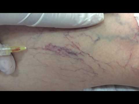 Как лечить капилляры на ногах Видны вены на ногах красные вены на ногах при беременности в баку