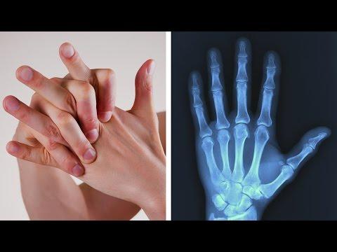 Drogen Baker-Zysten des Kniegelenks zur Behandlung von
