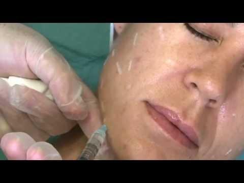 La démangeaison et la rubéfaction de la peau de la personne du masque