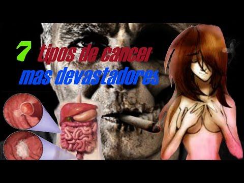 Cancer sarcoma de kaposi