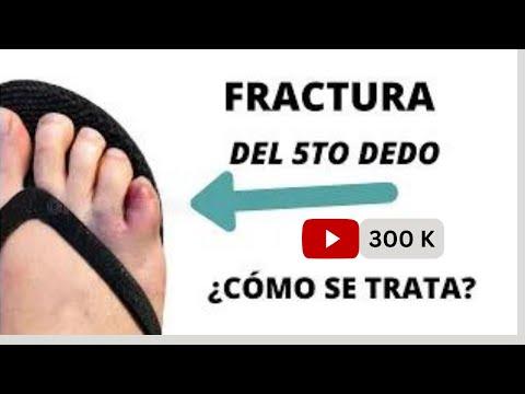 Como curar el hongo de las uñas en el pie el ungüento