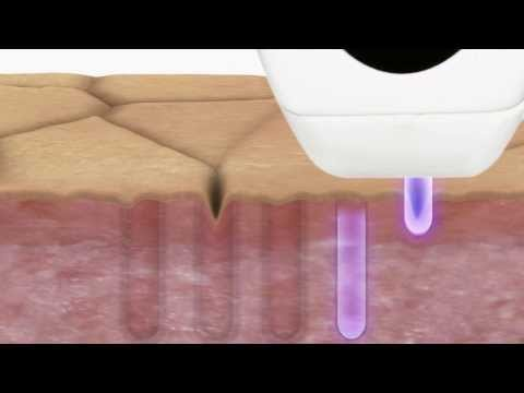 Tria Age-Defying Laser - How It Works