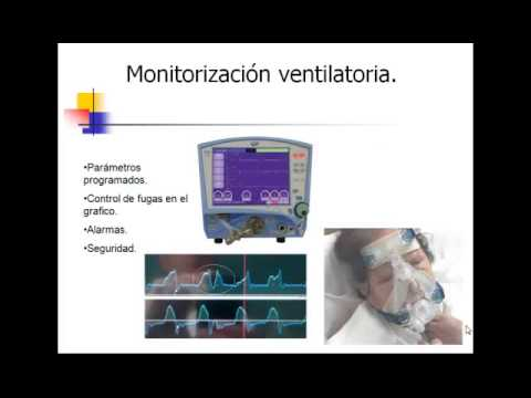 intervencion de enfermeria en cuidados criticos