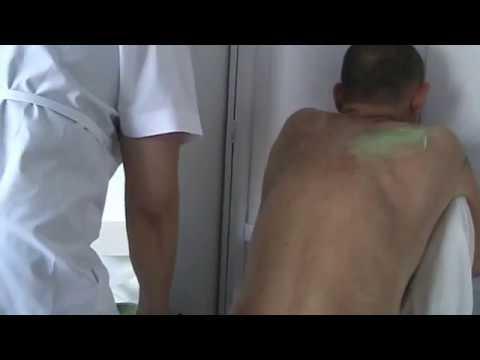 Farmaci allatto di trattamento di un chondrosis di reparto lombare