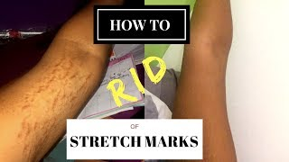HOW TO GET RID OF STRETCH MARKS & SCARS FAST!     #RealWednesdays
