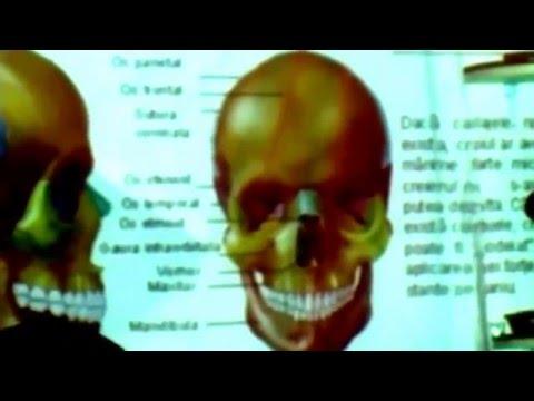 Bursita bolii de genunchi