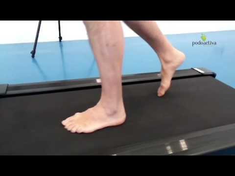 ชาร์จวิดีโอเท้า valgus