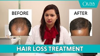 PRP Treatment For Hair Fall, Baldness & Hair Regrowth: Before, After Results