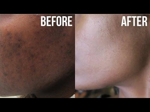 Pharmacy lunas para sa acne at edad spots