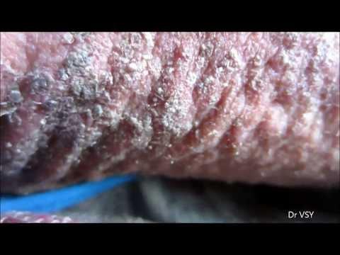 Trattamento di incrinature sui talloni a eczema