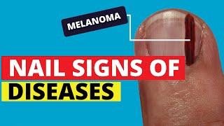 10 Nail Signs Of Health Problems (Subungual Melanoma, Finger Clubbing, Nail Pitting, Brittle Nails)