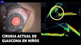 Cirugia actual de glaucoma en niños