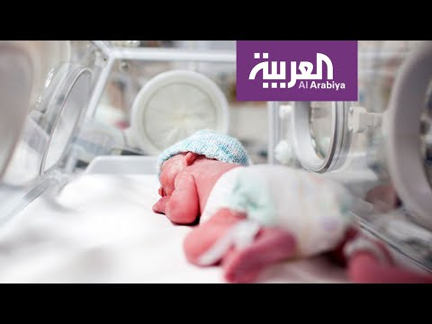 العرب اليوم - شاهد: 15 مليون طفل يولدون قبل الأوان سنويًا