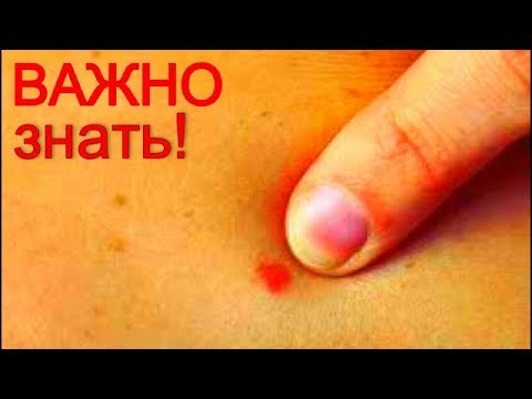 Отбеливание кожи не летом