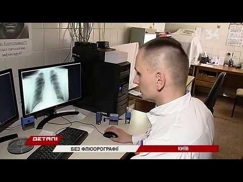 В Украине отменили обязательную флюорографию