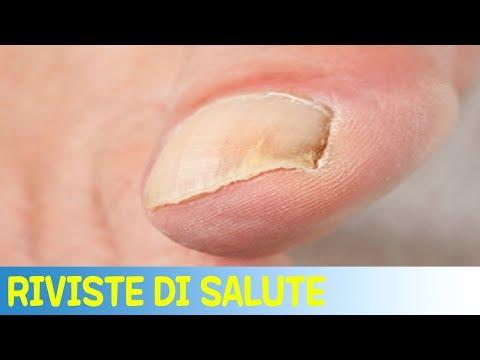 Le unghie exfronzute che trattare