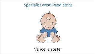 Paediatrics - Chickenpox