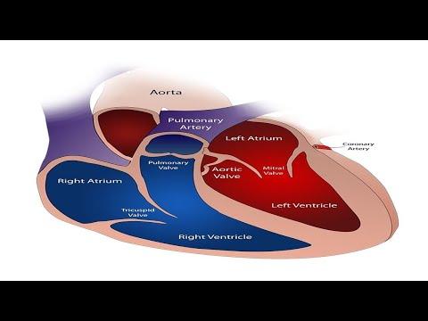 Nadciśnienie płucne poziomy
