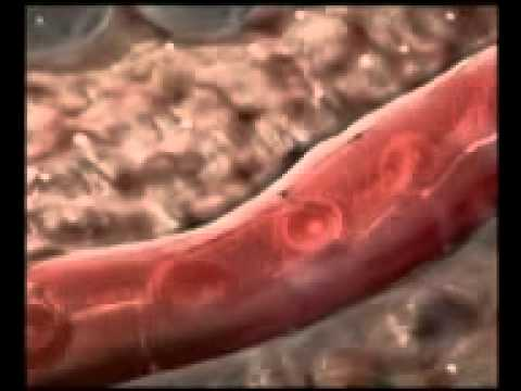 Die Würmer perschenije in der Kehle