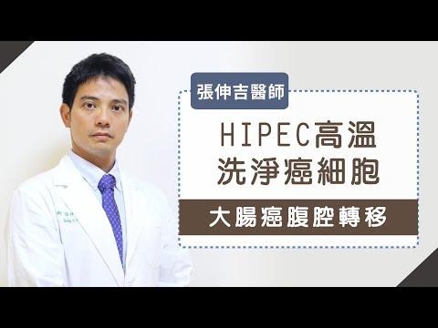 腹腔熱化療》大腸癌腹腔轉移! HIPEC高溫洗淨癌細胞 _張伸吉醫師