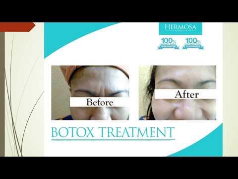 before after botox, hasil botox, 081 331 89 7878