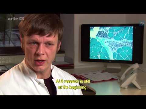 Der Zephir bei atopitscheskom die Hautentzündung
