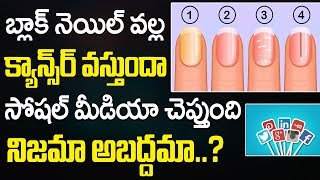 Causes Of Black Nail | How To Get Rid Of Black Enails | Black Nail Cancer | Nail Problems