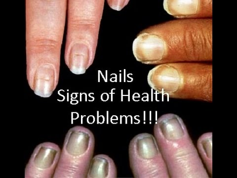 Video Nails Signs Of Health Diseases- SheCare