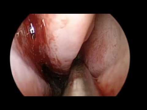 Endoskopowa operacja zatok - usunięcie polipów zatoki klinowej