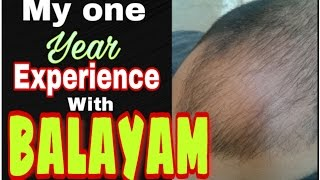 Does nail rubbing for hair growth really prevents from alopecia||100% correct explanation #tannudada