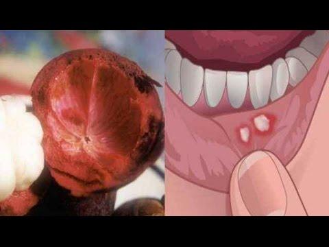 หลอดเลือดดำแมงมุมบนขาดัด