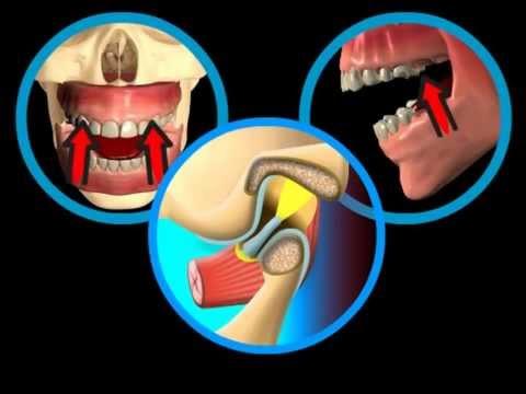 Glinoterapiya e le articolazioni