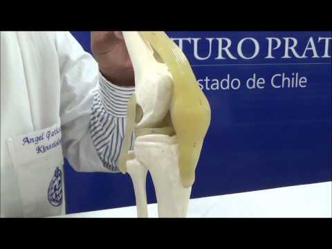 Si es posible eliminar una columna cervical sin necesidad de cirugía de hernia