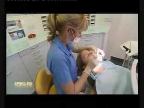 Video Bleaching der Zähne