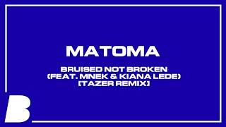 Matoma   Bruised Not Broken (feat. MNEK & Kiana Ledé) [Tazer Remix]